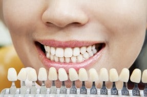 What Not To Do After Getting A Filling Dental Fillings