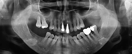 Claim for negligent wisdom teeth extraction
