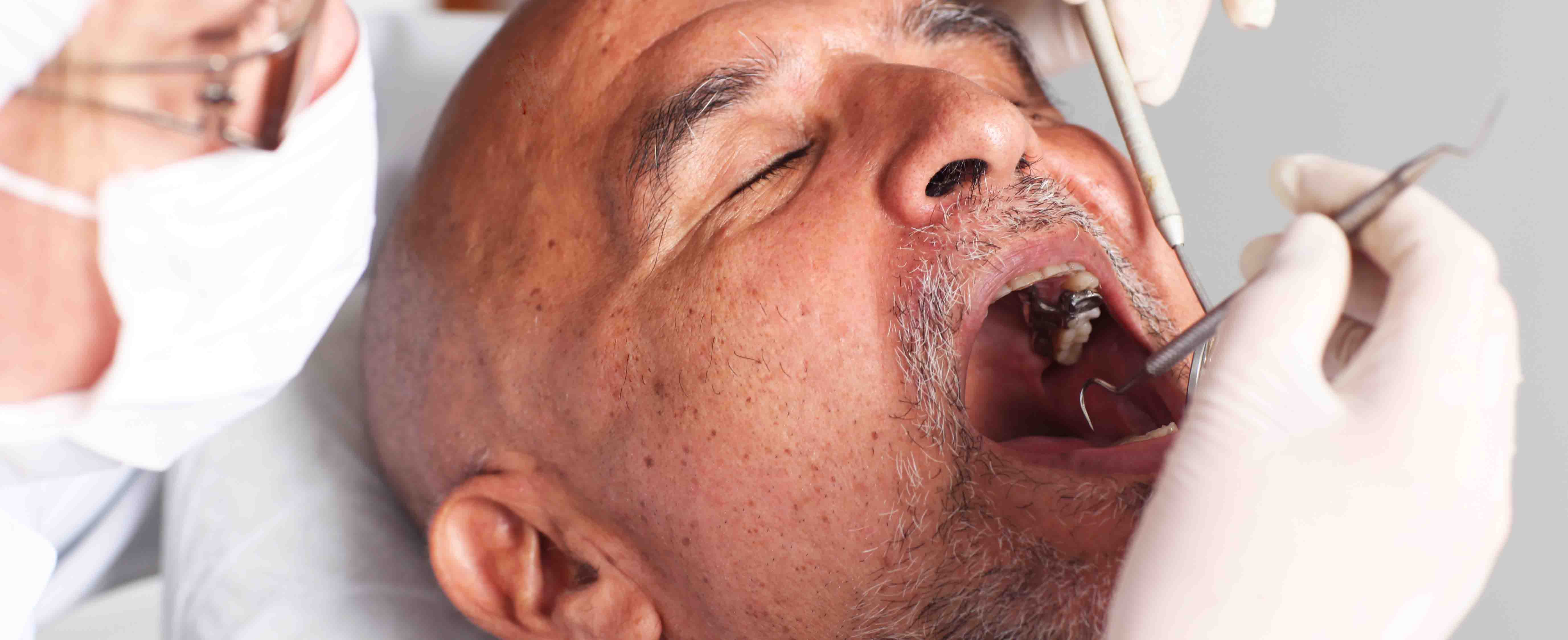 Compensation for undiagnosed mouth cancer - Dental